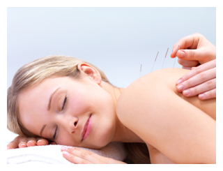 Acupuncture needles on the back of a beautiful woman - Portrait of a pretty lady in acupuncture therapy at the day spa